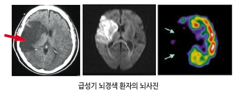 급성기 뇌경색 환자의 뇌사진