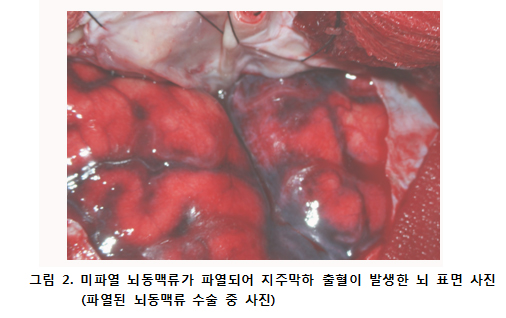 미파열 뇌동맥류가 파열되어 지주막하 출혈이 발생한 뇌 표면 사진