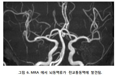 MRA에서 뇌동맥류가 전교통동맥에 발견된 사진