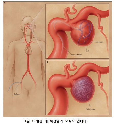 혈관 내 색전술의 모식도 그림