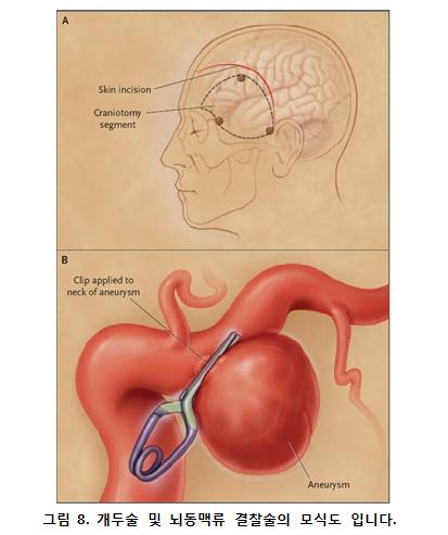 개두술 및 뇌동맥류 결찰술의 모식도 그림