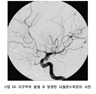 지주막하 출혈 후 발생한 뇌혈관수축증의 사진