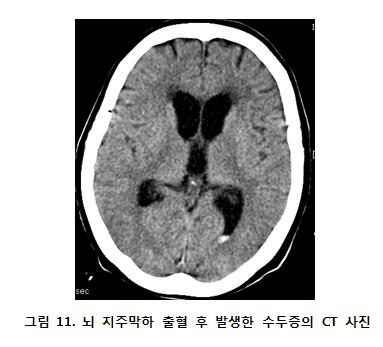 뇌 지주막하 출혈 후 발생한 수두증의 CT사진