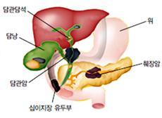 위, 췌장암, 십이지장 유두부, 담관암, 담낭, 담관담석 이미지