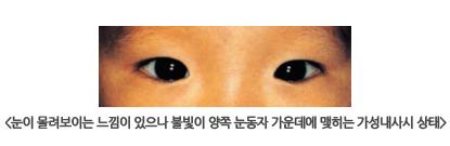 눈이 몰려보이는 느낌이 있으나 불빛이 양쪽 눈동자 가운데에 맺히는 가성내사시 상태