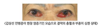 갑상선 안병증이 한창 염증기인 모습으로 결막의 충혈과 부종이 심한 상태