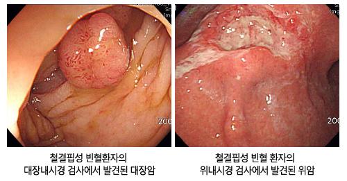 철겹핍성 빈혈환자의 대장내시경 검사에서 발견된 대장암과 위내시경 검사에서 발견된 위암 사진