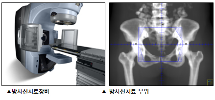 방사선치료장비, 방사선치료 부위