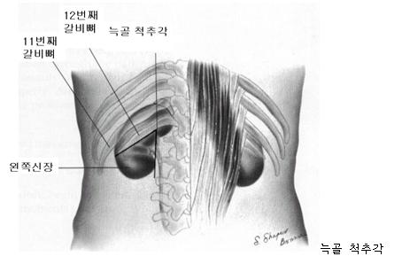 늑골 척추각 그림