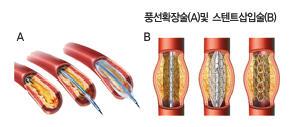 풍선확장술 및 스텐트삽입술
